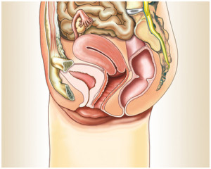 Gebärmutterspiegelung Erfahrungen